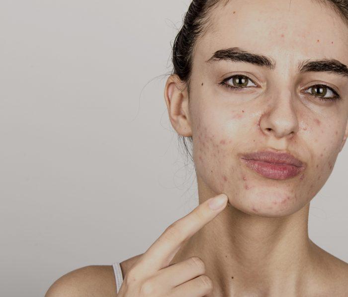 acne cryon